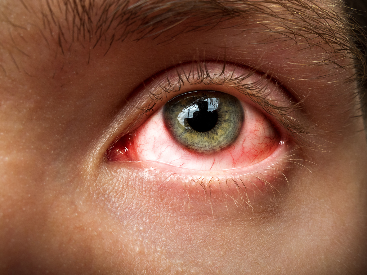 Gerötete Augen – harmlos oder gefährlich? Was sind die Gründe?