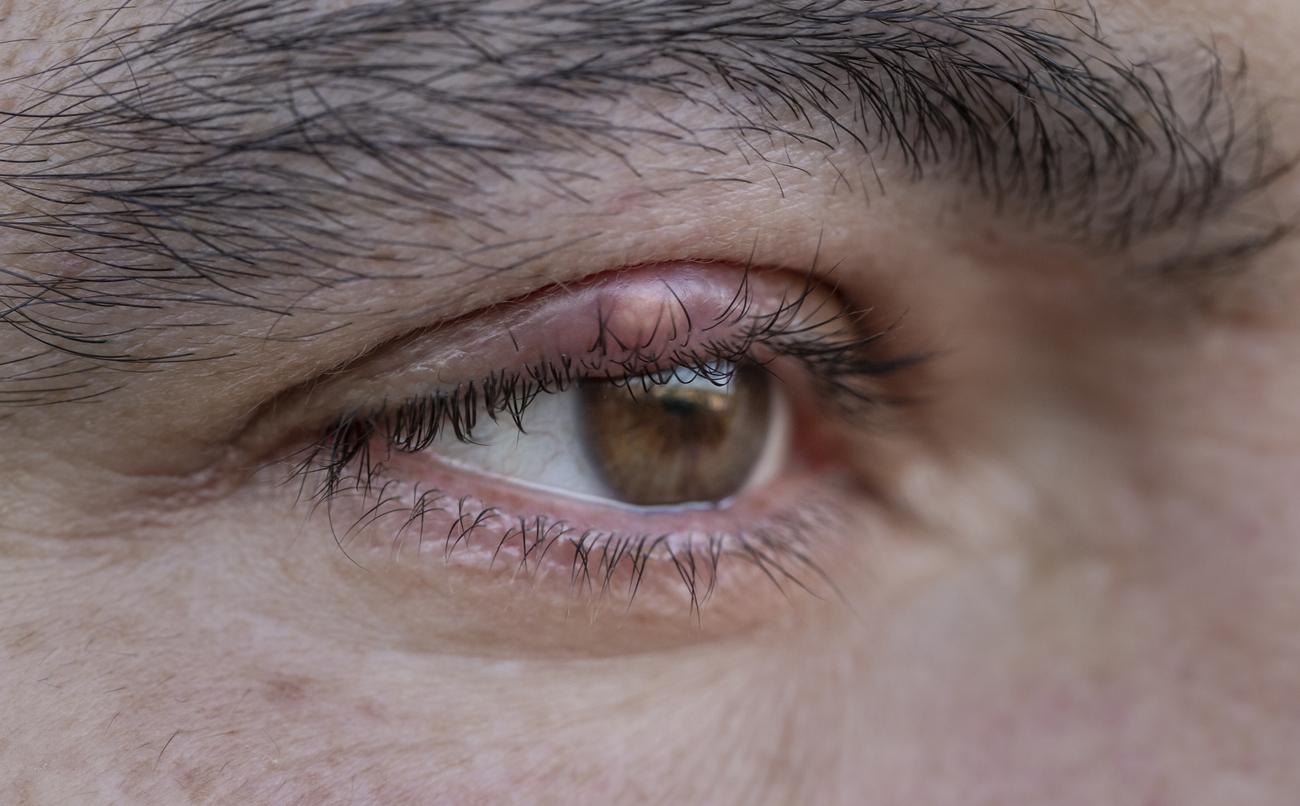 Wie Sie ein Gerstenkorn am Auge loswerden